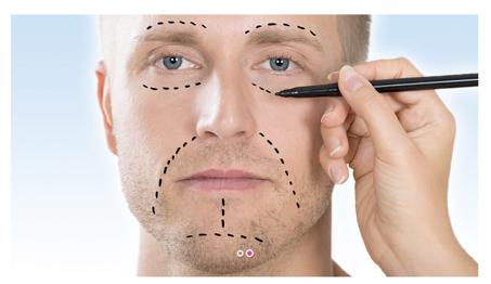 Die Gesichtsstraffung kann an verschiedenen Gesichtspartien ansetzen. Das Bild zeigt ein Gesicht, auf dem mögliche Ansätze für ein Facelift aufgezeichnet werden.