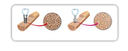 Implantate können Auswirkungen auf die Struktur des Kieferknochens haben. Das Bild zeigt vergleichend die Knochenstruktur bei herkömmlichen und bei modernen Implantaten