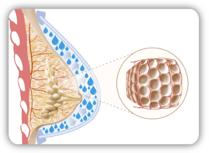 Beim Aquafilling wird das wasserbasierte Filling-Gel über eine Kanüle unter die Haut gespritzt und kann so für mehr Volumen und ein strafferes Aussehen sorgen. Das Bild zeigt eine schematische Darstellung einer weiblichen Brust mit Aquafilling.