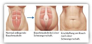 Während einer Schwangerschaft können die geraden Bauchmuskeln auseinanderweichen. Das Bild zeigt schematisch den Verlauf und das Hautbild auseinanderweichender Bauchmuskeln