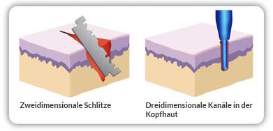 In de percutane techniek van saffier gebruiken we zeer gevoelige naaldapparaten met saffieruiteinden die bijzonder nauwkeurig werken mogelijk maken.Hierdoor kan een nog dichter transplantatieresultaat worden behaald met een 15 procent hogere groeisnelheid.De littekenvorming is ook aanzienlijk lager.