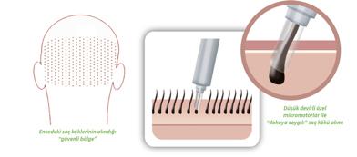 Mit modernen Spezialbohrern gelingt die präzise Entnahme der Haarwurzeln am Hinterkopf. Das Bild zeigt ein Schema der Haarfollikelentnahme mit einem Spezialbohrer