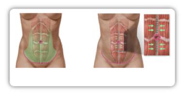 Im Rahmen einer großen Bauchdeckenstraffung können auch die geraden Bauchmuskeln wieder gerichtet werden, um einer Vorwölbung der Bauchhöhle vorzubeugen. Im Bild ist das Verfahren schematisch dargestellt.