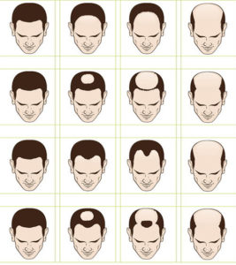 Zur Bestimmung des Stadiums des androgenetischen Haarausfalls wird das Hamilton-Norwood-Schema verwendet. Das Bild zeigt das Schema mit allen Stadien im Überblick.