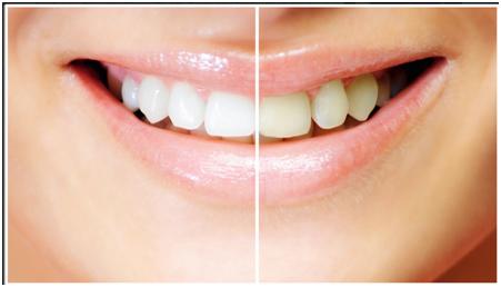 : Unsere Zahnästhetiker bieten Ihnen wirksame Methoden, die Ihre Zähne je nach Verfärbungsgrad und Ihren Wünschen um bis zu 8 Farbnuancen aufhellen können. Das Bild zeigt verfärbte und gebleichte Zähne im Vergleich