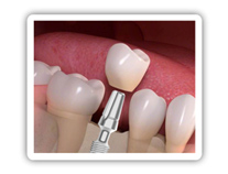 Auf moderne Implantate aus einer Titanlegierung werden hochwertige Kronen aus Zirkonoxid gesetzt.