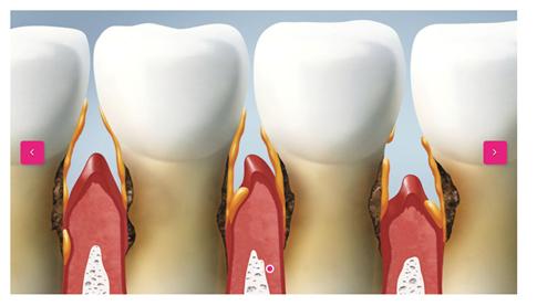 Parodontitis kann zu Zahnverlust führen. Bei estethica behandeln wir Zahnfleischentzündungen und Parodontitis umfassend. Das Bild zeigt schematisch von Parodontitis befallene Zähne.