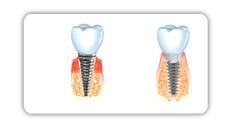 Ein herkömmliches und ein modernes Zahnimplantat im Vergleich.