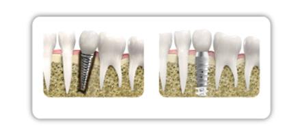 Implantate müssen millimetergenau eingesetzt werden. Das Bild zeigt falsch eingesetzte und korrekt implantierten Zahnersatz im Vergleich.