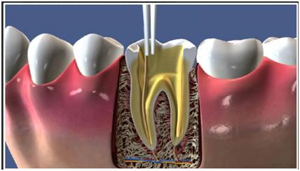 Um die entzündete Zahnpulpa zu erreichen und reinigen zu können, wird ein Zugang zum Zahnmark gelegt. Das Bild zeigt die schematische Darstellung einer Zahnwurzelöffnung.