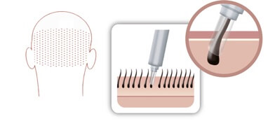 Modern special drills enable precise removal of the hair roots at the back of the head. The picture shows a diagram of the hair follicle removal with a special drill.