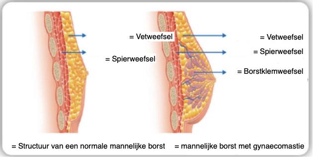 Structuur van een normale mannelijke borst & mannelijke borst met gynaecomastie