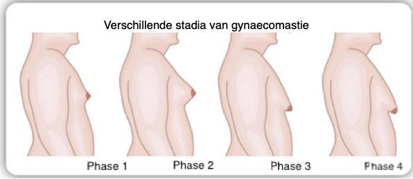 Verschillende stadia van gynaecomastie